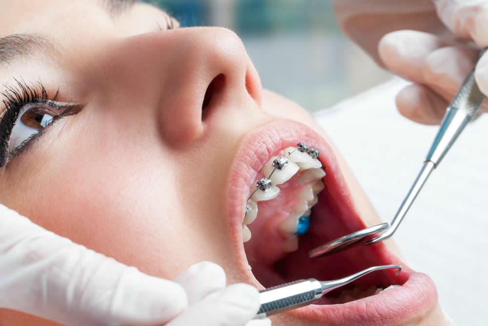 Plano odontológico com manutenção de aparelho